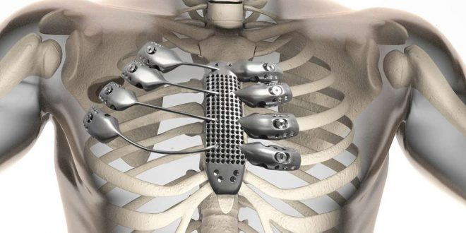 VIDEO 54 Year Old Cancer Patient Receives 3D-printed Titanium Implant in Chest