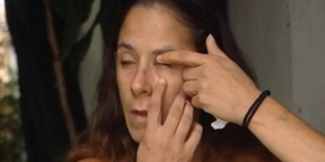 Florida Woman Ends Up Gluing Her Eye Shut