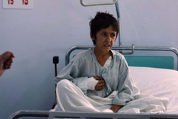 An Afghan boy who survived the Kunduz bombing receives treatment in Kabul on Tuesday. Wakil Kohsar / AFP / Getty Images