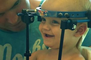 Toddler's Head Reattached To Body in 'Miracle Surgery' After Car Accident