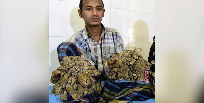 Bangladesh 'Tree Man' Undergoes Succesful Surgery, May Need Several more
