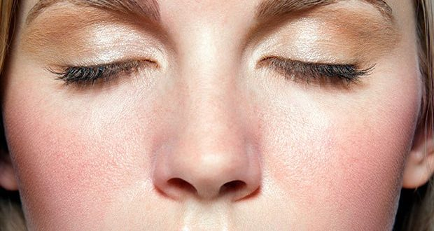 People With Rosacea at Higher Risk for Alzheimer's, Study Says