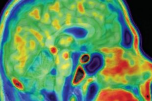 Alzheimer's Disease May Be Linked to Brain Fighting Infections, Study Says
