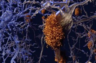 Researchers Say Protein Receptors May Be Targeted to Treat Alzheimer's Disease
