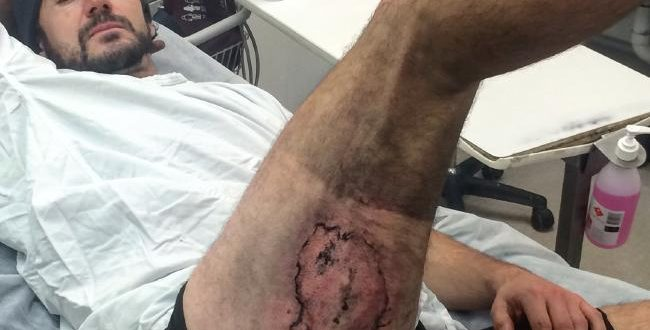 Australian Man Recovering From Severe Burns After iPhone 6 Explodes in Pocket