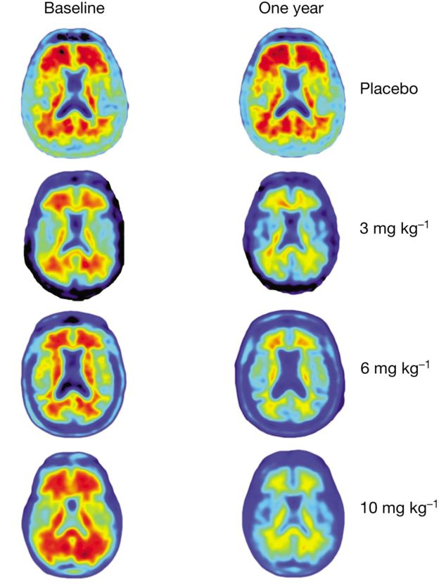 Brain scans show the effect of different dosages after a year
