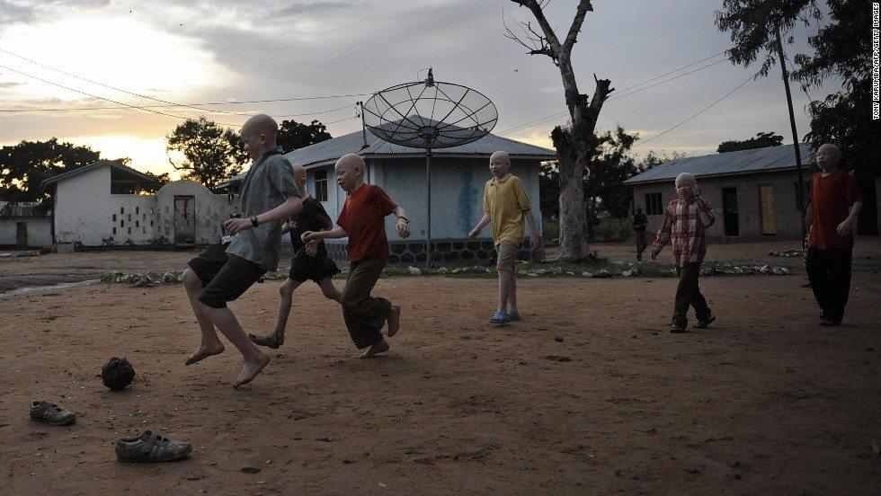 Albinos in Malawi Facing 'Extinction' After Attacks, U.N. Warns