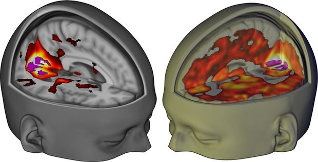 Brain Scans Visualize Effects of LSD on Human Brain for 1st Time