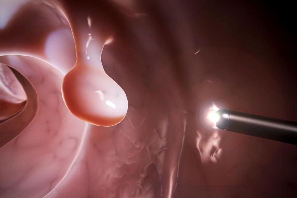 Colorectal Cancer: Risk Increases if Colonoscopy Is Delayed After Positive Fecal Test, Study Finds